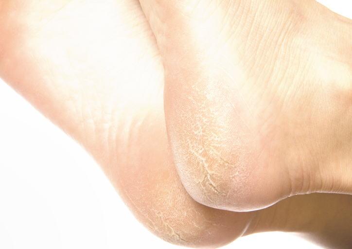 ナーブルスソープ - 角化症 - ガサガサかかと ひび割れかかと つるつるに